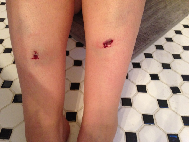 Bloody, swollen and bruised shins